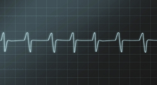 Choosing the right RTOS: A life or death decision