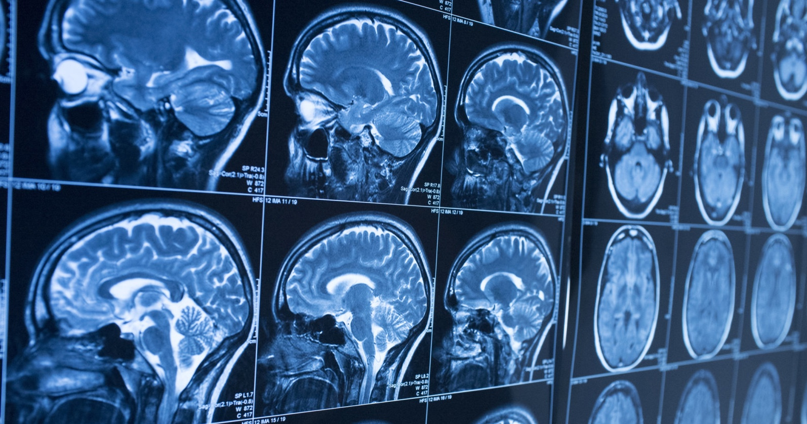 AI for early detection of Alzheimer's