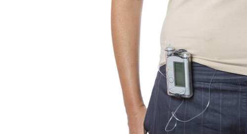 A woman wearing an insulin pump.