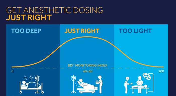 Get Anesthetic Dosing Just Right with BIS™ Monitoring
