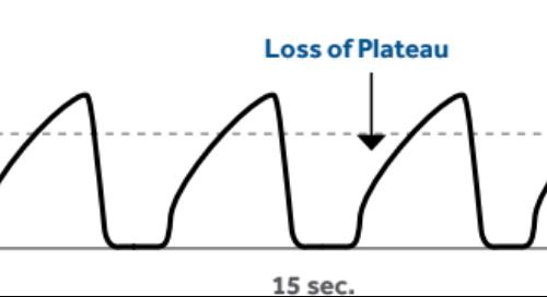 Normal and Abnormal etCO2/Capnograph Waveforms