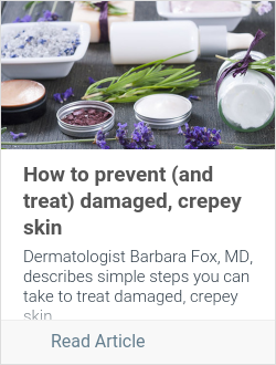How to prevent (and treat) damaged, crepey skin