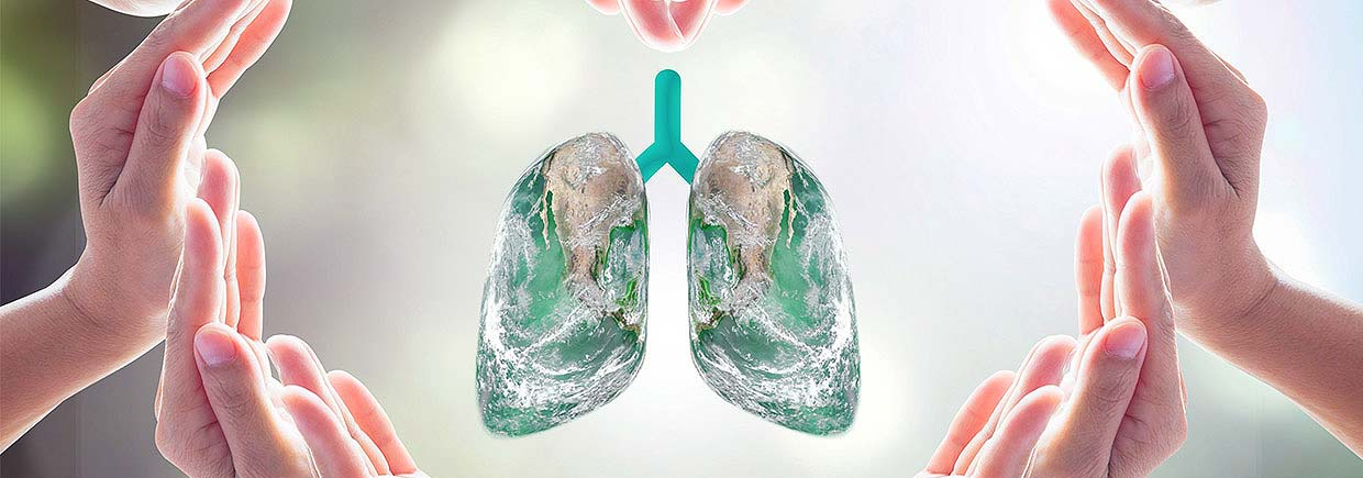 Lung cancer is the leading cause of cancer deaths in the United States