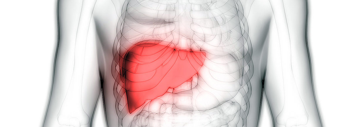 Primary liver cancer is on the rise, affecting nearly 30,000 Americans each year.
