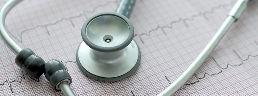 new-tech-for-cardiac-arrhythmia