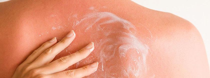 soothe-sunburn