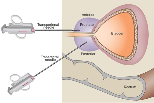 Comparison of transperineal and transrectal biopsy approach