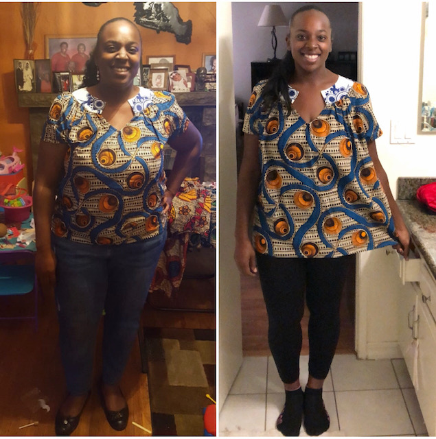 Mia Young-Adeyeba's journey with bariatric surgery.
