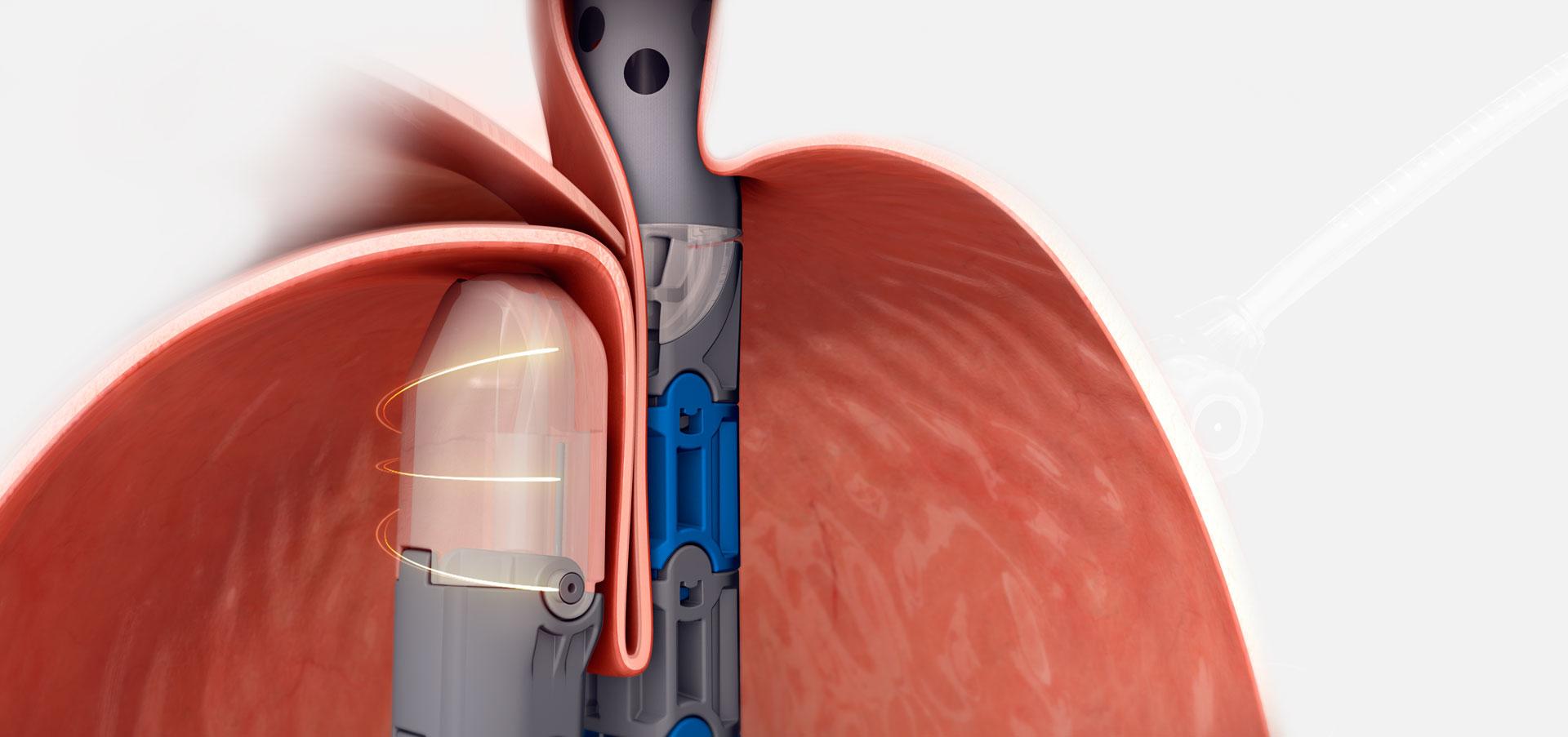 Picture of the TIF procedure to treat GERD