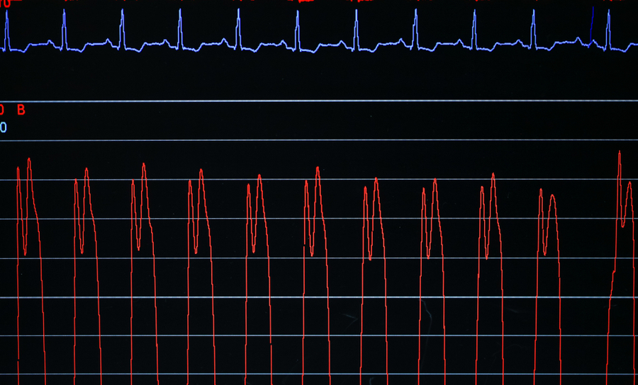 Graph with signal from an EKG monitor
