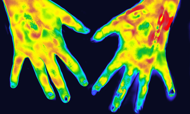Human hands heat finite element solver results