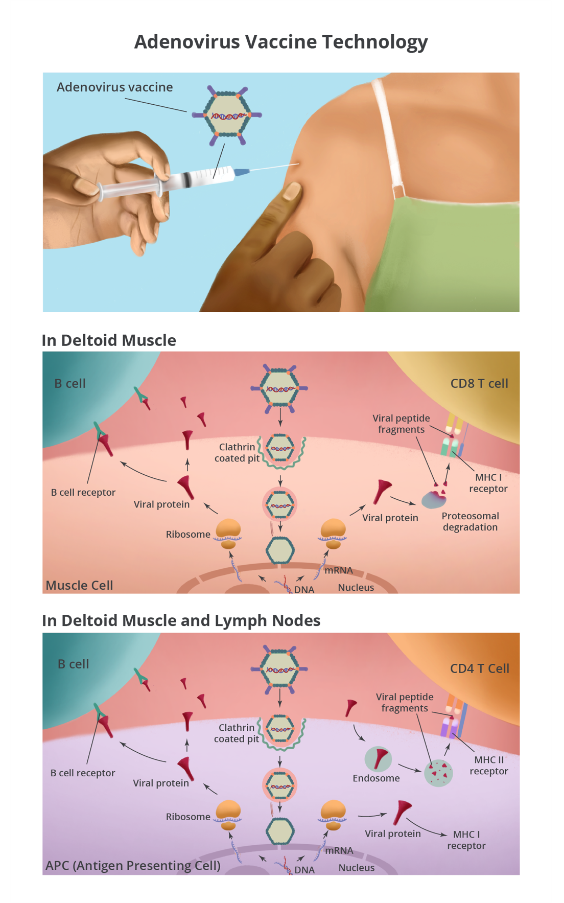 Adenovirus vaccine is injected into the muscle of the upper arm, creating an immune response. The details are described in the paragraphs below.