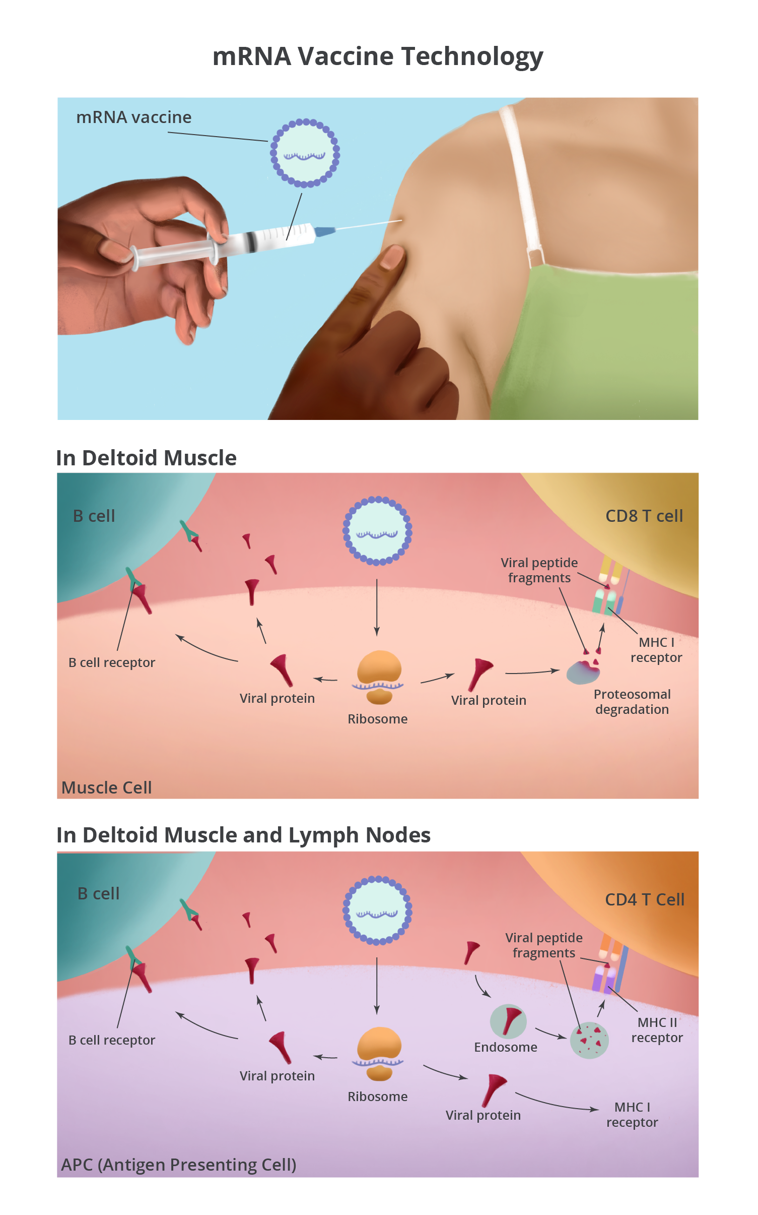 mRNA vaccine is injected into the muscle of the upper arm, creating an immune response. The details are described in the paragraphs below.