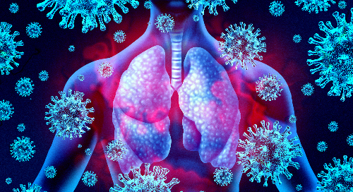 Scope out the facts on respiratory virus detection from McGraw Hill's AccessScience