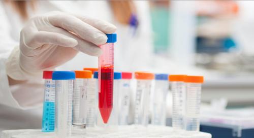 臨床試験のための定量的モニタリング