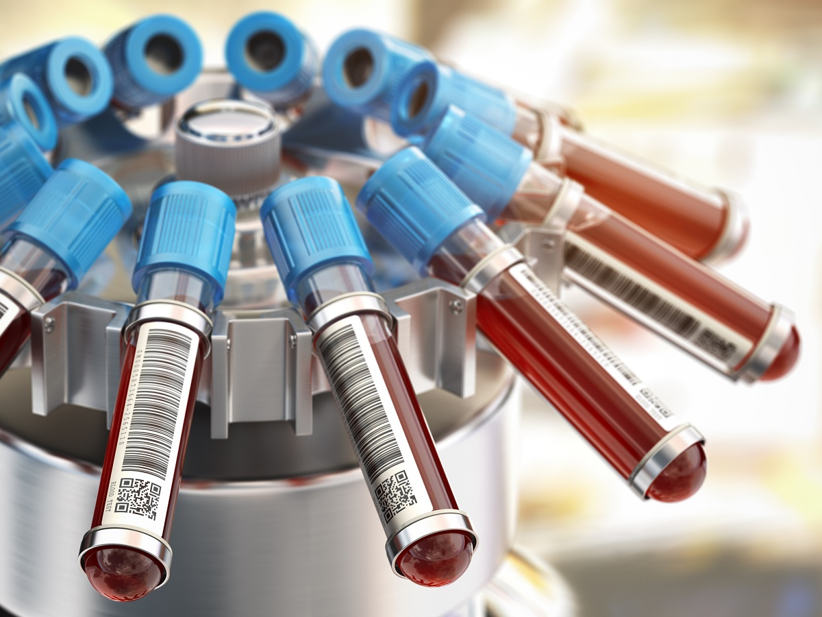 centrifuge holding vials of blood with blue caps and barcode labels