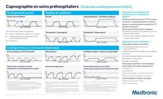 Guide des oscillogrammes