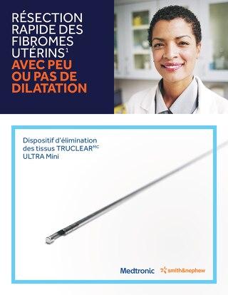 Résection rapide des fibromes utérins avec peu ou pas de dilatation