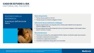 CASO DE ESTUDIO 1 - IDA