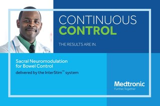 CONTINUOUS CONTROL