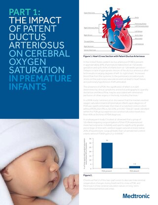 PDA and Cerebral Oxygen Guide