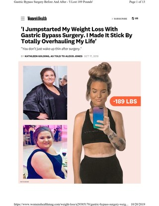 """Women's Health Patient Spotlight: """"I Jumpstarted My Weight Loss With Gastric Bypass Surgery"""""""