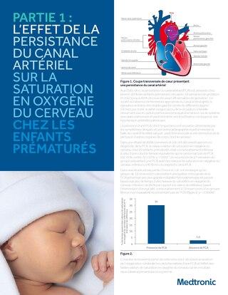 L'EFFET DE LA PERSISTANCE DU CANAL ARTÉRIEL SUR LA SATURATION EN OXYGÈNE DU CERVEAU CHEZ LES ENFANTS PRÉMATURÉS