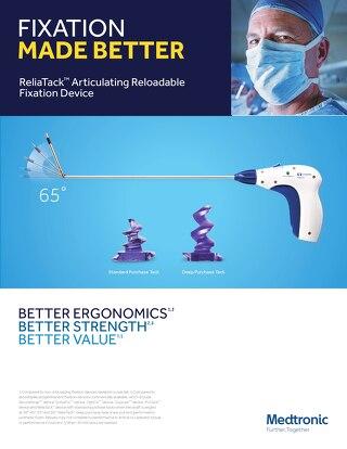 Brochure: ReliaTack™ Articulating Reloadable Fixation Device Optimized