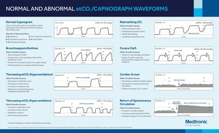 Poster: Capnography Normal Waveforms