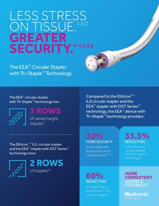 Infographic: EEA™ Circular Stapler with Tri-Staple™ Technology