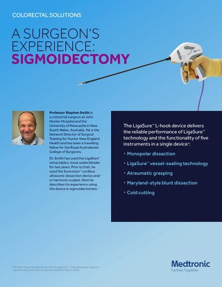 A Surgeon's Experience: Sigmoidectomy with the LigaSure™ Retractable L-hook Laparascopic Sealer/Divider