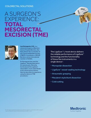 A Surgeon's Experience: Total Mesorectal Excision (TME) with the LigaSure™ Retractable L-hook Laparascopic Sealer/Divider