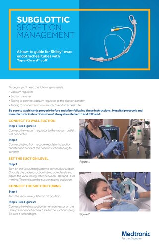 HOW TO: SUBGLOTTIC SECRETION MANAGEMENT for Shiley™ evac endotracheal tubes with TaperGuard cuff