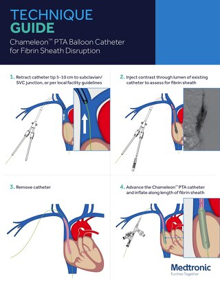 Guide: Chameleon Fibrin Sheath Disruption Procedure