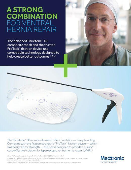 Parietene™ DS composite mesh and ProTack™ fixation device