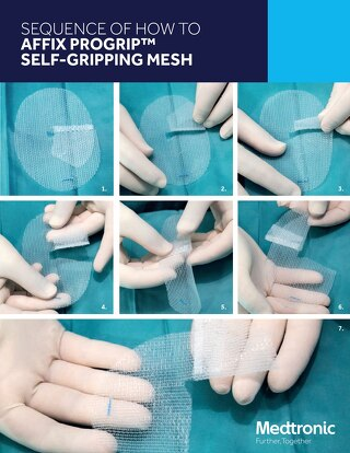 SEQUENCE OF HOW TO AFFIX PROGRIP™ SELF-GRIPPING MESH
