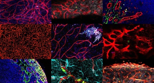ZEISS presents the new Cell Picture Show: Tumor Microenvironment