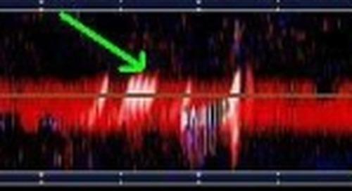 Detection of Cerebral Microemboli by Transcranial Doppler