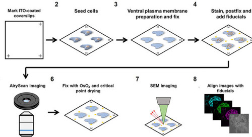 Spotlight on the cells' ultrastructure