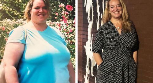 Weight Loss Surgery Transformed Marianne's Physical and Emotional Health