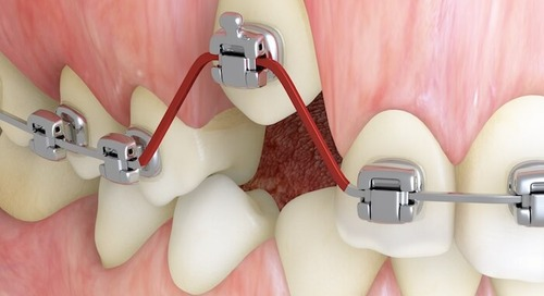 Shape-Memory Alloys Bid Adieu to Old-School Orthodontics