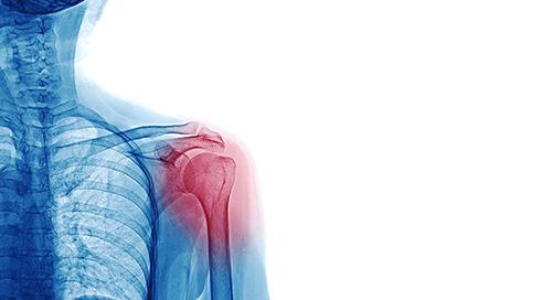 Musculoskeletal Disorders (MSD)