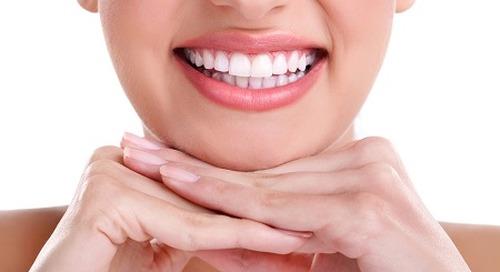 Mengapa Memutihkan Gigi Penting?