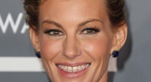 Senyum Menawan Dengan Kawat Gigi