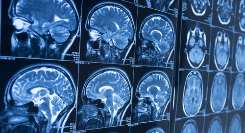 AI could detect Alzheimer's 10 years in advance