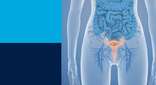 Global Value Dossier for Hysterectomy