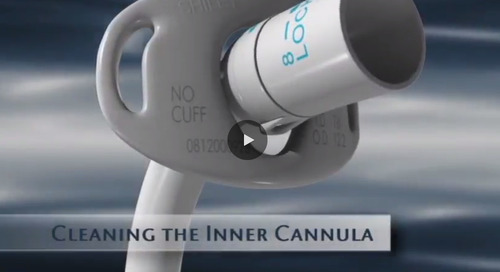Cleaning the Inner Canula  [Watch Now]