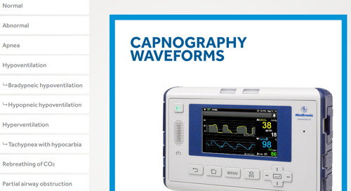 Capnography Monitoring Waveforms