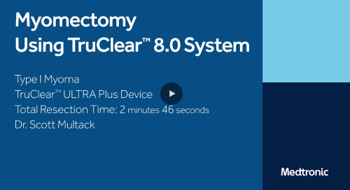 Myomectomy Using TruClear™ ULTRA Plus Device [Watch Now]
