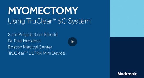 Fibroid Removal Using TruClear™ ULTRA Mini Device [Watch Now]
